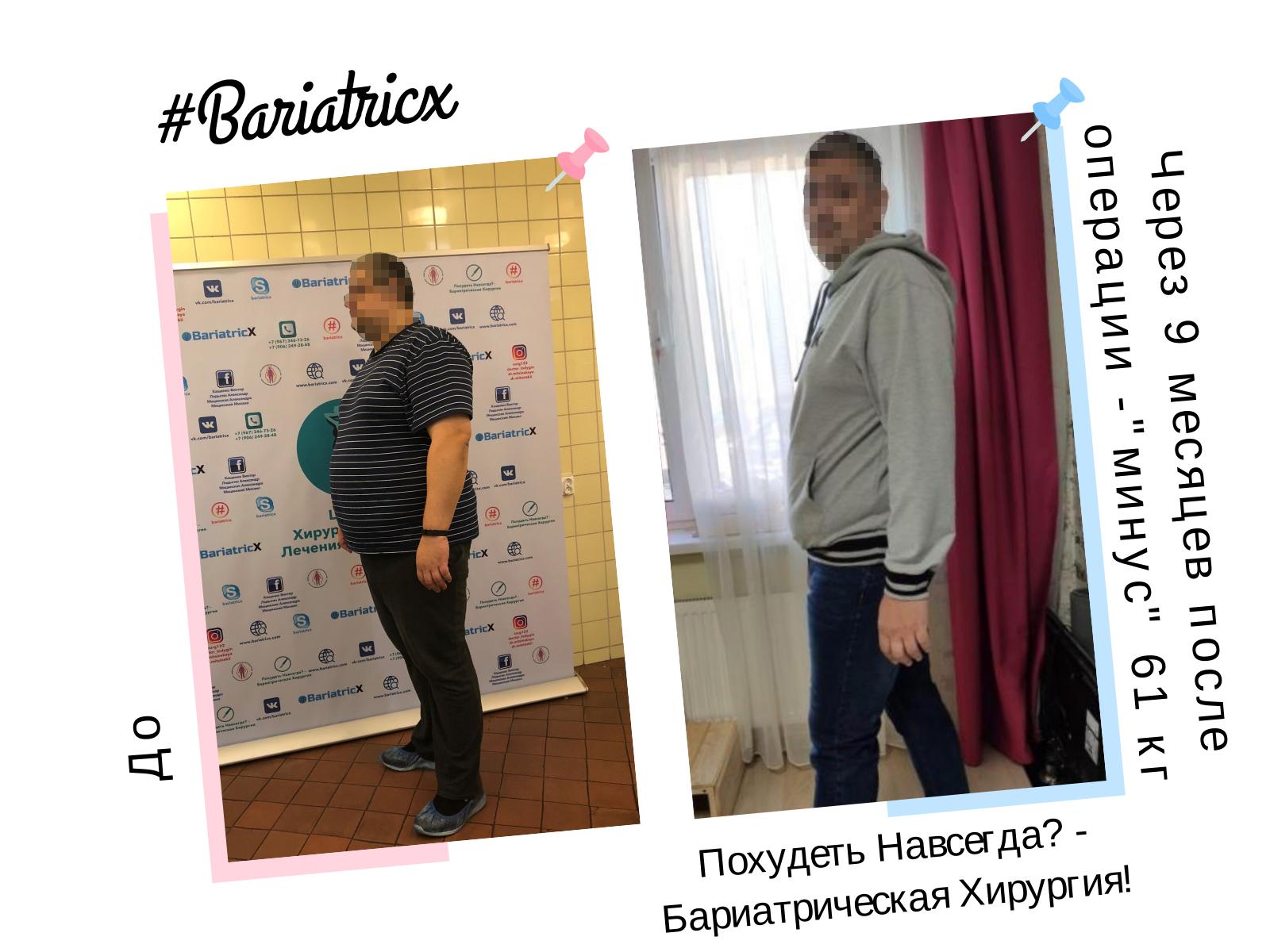 59 Через 9 месяцев 4 (Рост 196см вес 119кг ИМТ 30) минус 61кг (Пиксель)