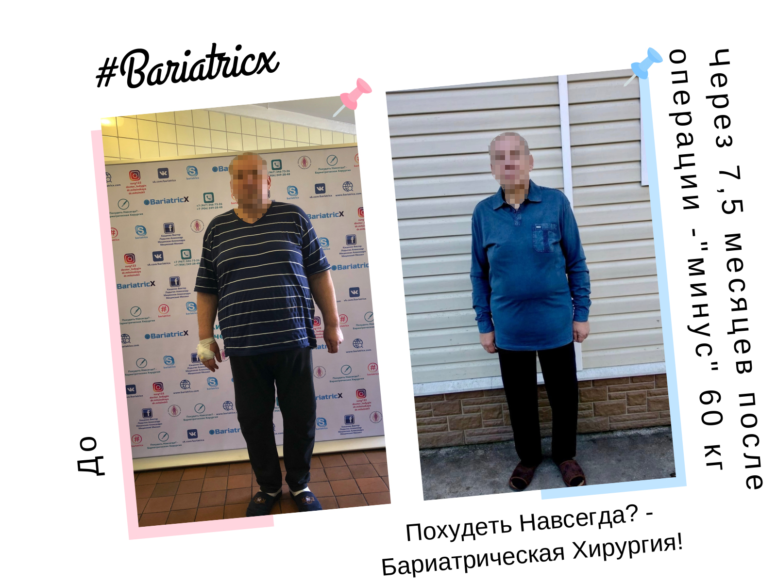 75 Через 75 месяцев 3 (Рост 186см вес 116кг ИМТ 33) минус 60кг (Пиксель)