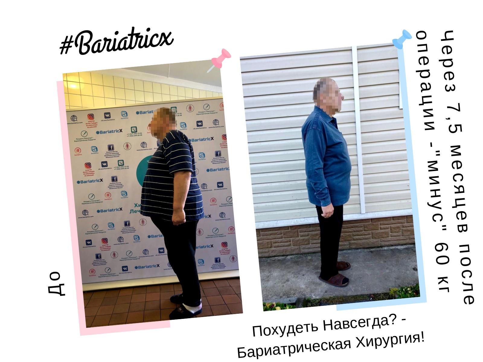 75 Через 75 месяцев 4 (Рост 186см вес 116кг ИМТ 33) минус 60кг (Пиксель)